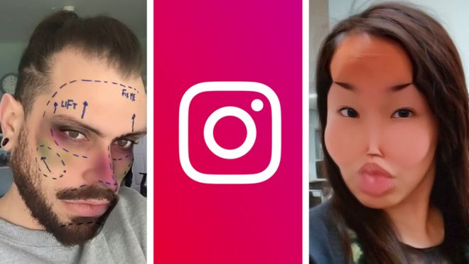 Instagram bans cosmetic surgery